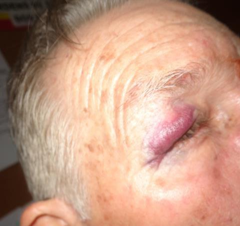Idoso ficou com hematomas no rosto e no corpo. Foto: minasacontece.com.br