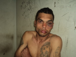 A vítima, Miguel, foi preso em outubro do ano passado foi solto em fevereiro. Foto: Blog do Airton Chips