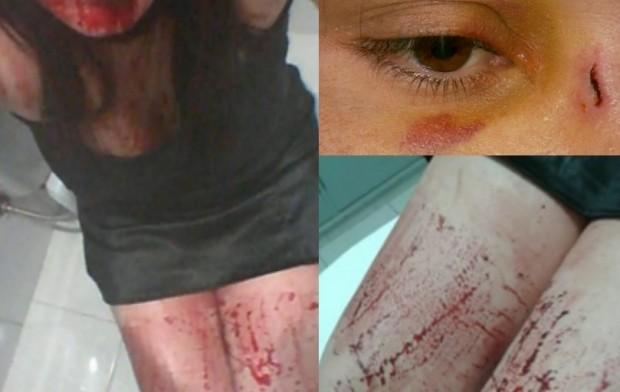 Mulher postou fotos após ser agredida por ex-companheiro em Elói Mendes, MG (Foto: Reprodução Facebook)