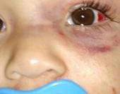 Criança estava com o padrasto, e foi encontrada pela mãe com hematomas e olho inchado. Padrasto esta desaparecido.