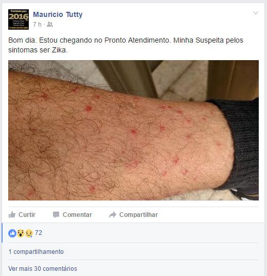 Vereador postou na rede social sobre suspeita de estar com Zika. Foto: Reprodução Facebook.